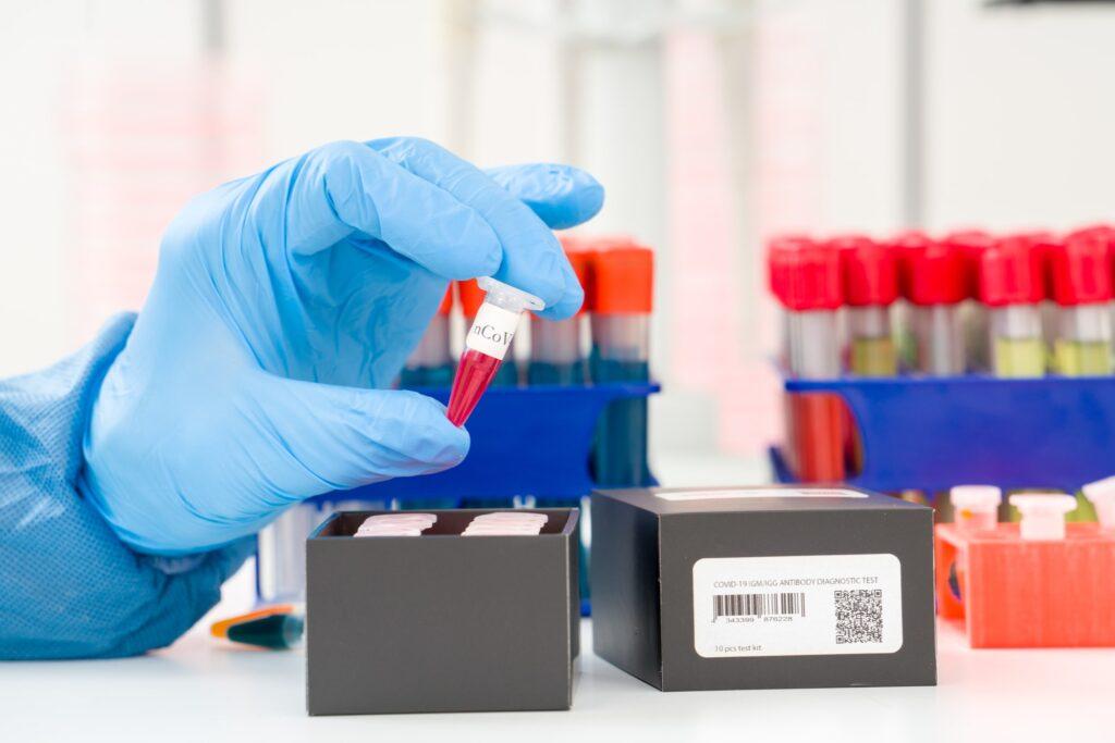 coronavirus covid-19 pruebas serológicas América Latina Coronavirus tests anticuerpos-min